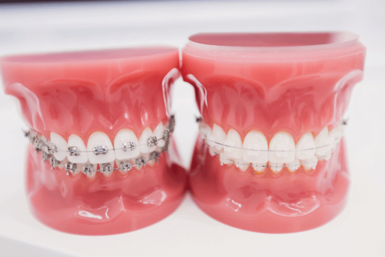 metal ceramic braces