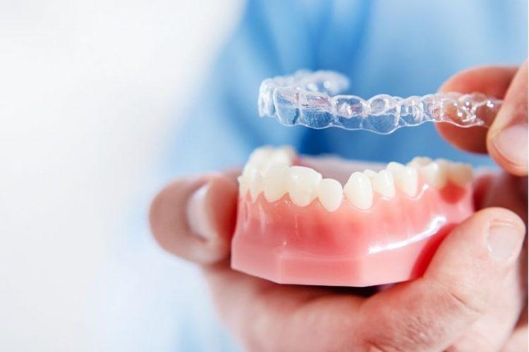 Transparent braces